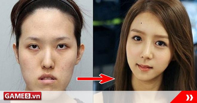 Choáng váng với màn lột xác vi diệu nhờ dao kéo của giới trẻ Hàn Quốc